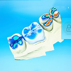 CEREC smile design software