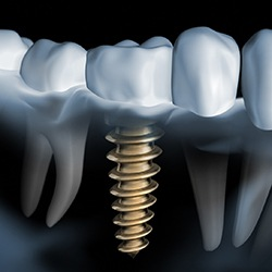 Model smile with implant supported bridge