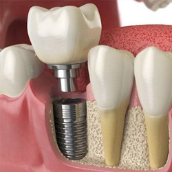 dental implant post