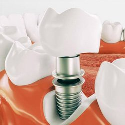 dental implant components